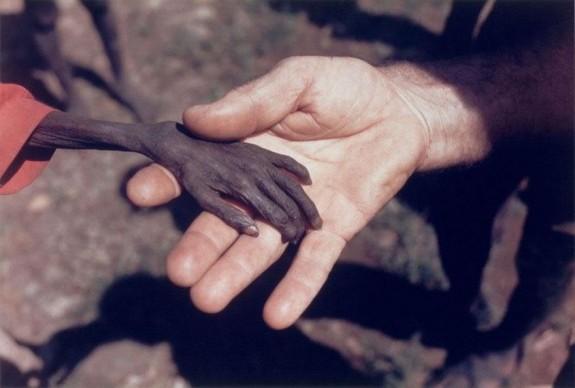 Ръцете на гладуващо дете и мисионер
